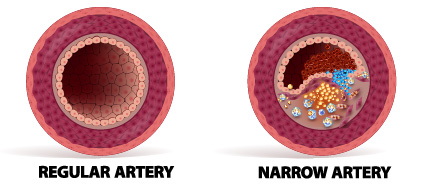 Regular artery vs Narrow artery